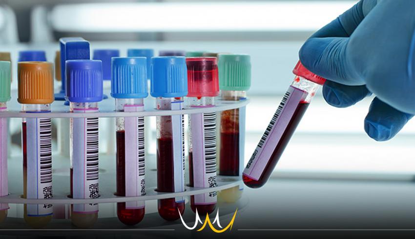 Novembro Azul: FIB e Biolab oferecerão exame de sangue gratuito para bauruenses